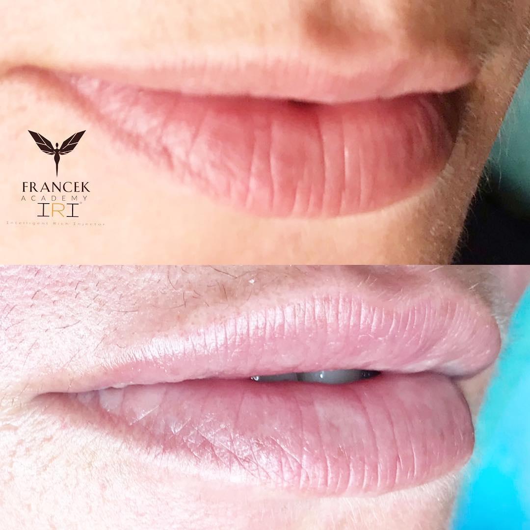 Hyaluron IRI Pen Lippen Behandlung St.Gallen