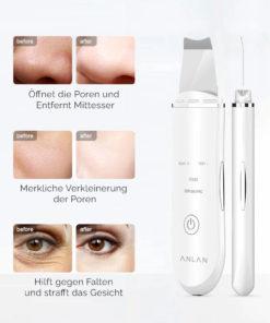 Ultraschall Gesichtsreiniger kaufen Schweiz